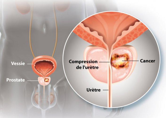 Tout ce qu'il faut savoir sur le cancer de prostate