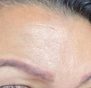 Zoom sur le détatouage des sourcils au laser